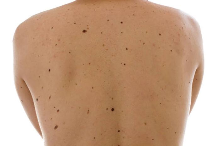 Sjekk huden din og vær oppmerksom på forandringer i føflekkene dine